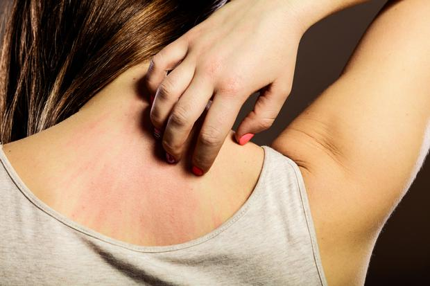 How do I get rid of a recurring scabies infection