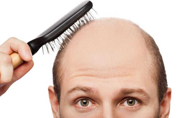 Male pattern baldness affects over 50pc of men over 50