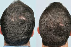 Ross McDonagh's hair before and after treatment.