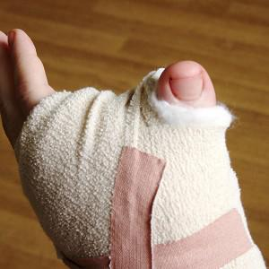 A man has had his big toe attached to his hand after cutting off his thumb
