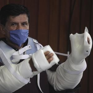 Gabriel Granados Vergara received a double arm transplant at the National Institute of Medical Science and Nutrition in Mexico City (AP)