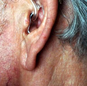 Ageing signs like creased earlobes could be a sign of heart disease