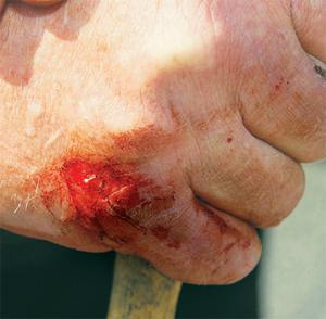 The wound inflicted on Joe Burke