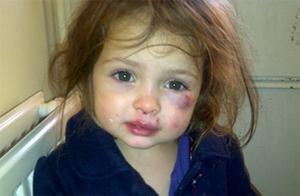 Katie Ann, who was attacked by another toddler at her nursery