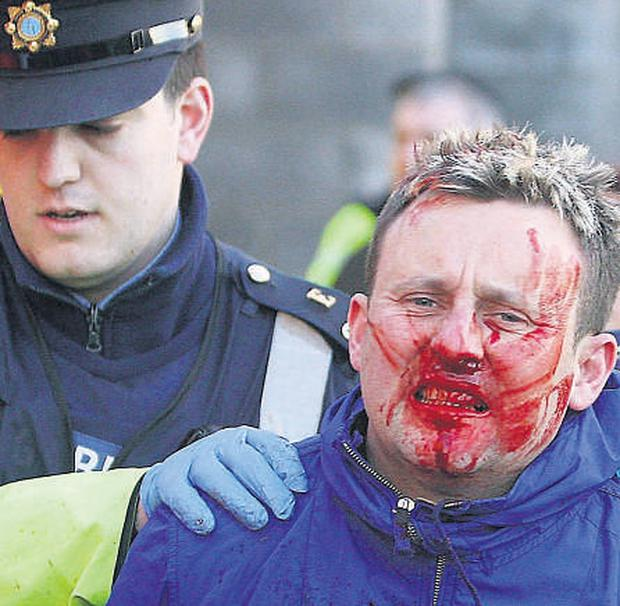 Gardai lead an injured man away from the fracas