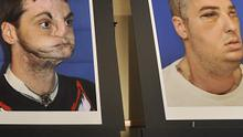 Photographs of Richard Lee Norris, the recipient of the most extensive full face transplant completed to date (AP)