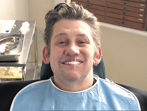 Cheese... Shane McGowan shows off his new pearly whites for the People In Need advert