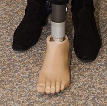 A prosthetics expert has been struck off over a false leg error
