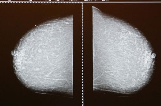 Doctors discovered a way of destroying tumours by freezing them Photo: Getty Images