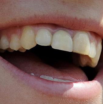The speed of smile can influence the first impressions, new research has shown