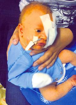 Xavier Cutillo, who was left blind in one eye and brain-damaged after a catalogue of errors during a routine birth