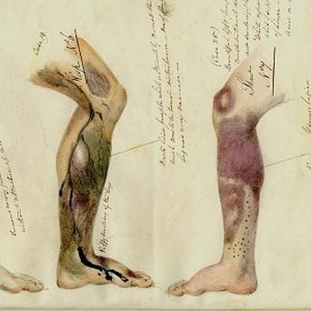 A drawing from journals written by Royal Navy surgeons between 1793 and 1880