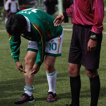 Bolivia's President Evo Morales shows the injury caused by a player of a rival team during a friendly soccer match (AP)