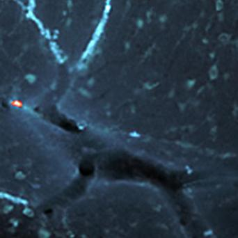 An image of Rudolph has appeared in a close-up picture of a blood vessel in the brain