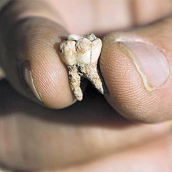 Archaeologist Avi Gopher, from the Institute of Archaeology of Tel-Aviv University, holds an ancient tooth that was found at an archaeological site in Israel yesterday