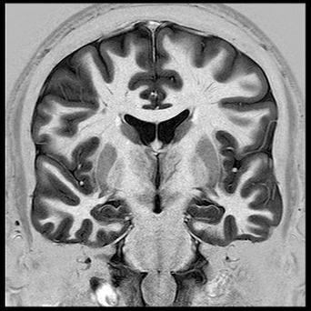 Brains of 90 students were scanned in the UCL study