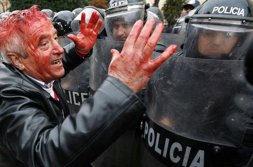 A demonstrator covered in blood gestures to police during an anti-government protest in Tirana, Albania, yesterday. Photo: ARBEN CELI/REUTERS