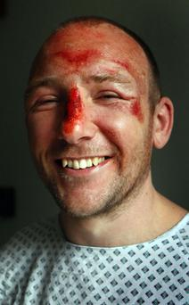 Adam Potter (36) recovering at the Southern General hospital in Glasgow. Photo: DANNY LAWSON/PA WIRE