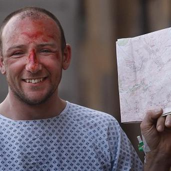 Adam Potter, who fell almost 1,000ft from the summit of Britain's highest mountain, recovers at the Southern General hospital in Glasgow