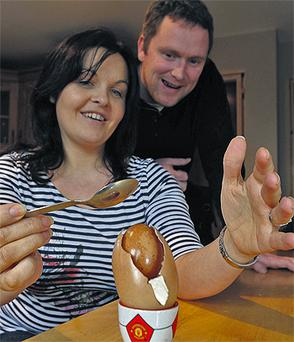Caroline and Adrian Sheehan from Crohane, Killarney, Co Kerry, show off their egg inside an egg, known as an 'ovum in ovo', which they say has a one in four million chance of happening