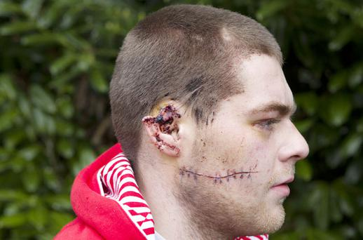 Brendan Higginbotham bears the scars left by the brutal attack that was carried out on him in a vacant property in James Lane, Newbridge, Co Kildare. Photo: Thomas Nolan