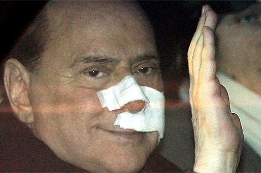 Silvio Berlusconi following the 2009 attack. Photo: AP