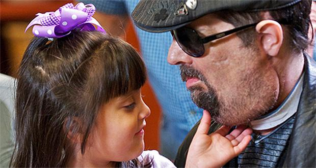 Full face transplant patient Dallas Wiens with his three-year old daughter Scarlette