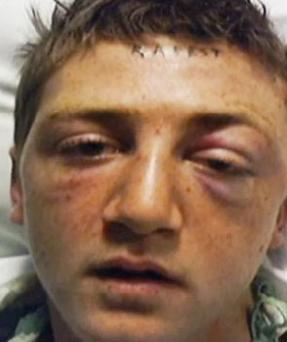 Stet Johnson was attacked and had his forehead tattoed by the gang in Oklahoma