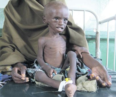 Abdihakin Omar (3), a starving child from southern Somalia, waits at Banadir hospital yesterday