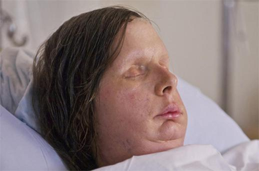 Undated photo shows Charla Nash after her May, 2011, face transplant. Photo: Reuters