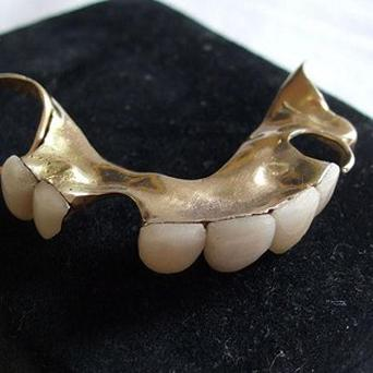 A Brazilian thief has been caught after he dropped his false teeth
