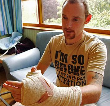 James Byrne shows off his new thumb