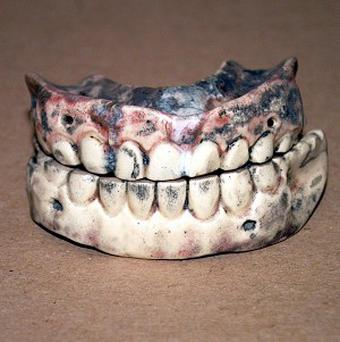 False teeth were among the items given to police as lost property
