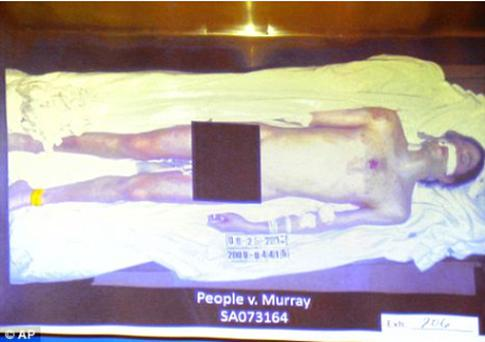 A photograph of Michael Jackson's body is projected by the prosecution during Conrad Murray's involuntary manslaughter trial. Photo: AP