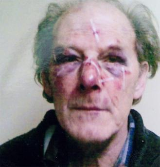 The injuries suffered to Michael Leech aged 74 at the time of the assault