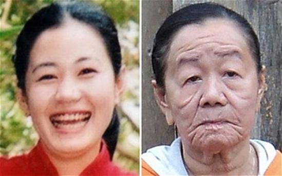 Nguyen Thi Phuong, aged 21, left, and how she looks now, aged 26, after having suffered an allergic reaction to seafood