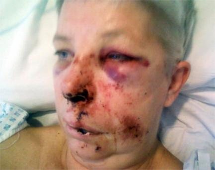 Carol Manley suffered fractures to her face and ribs after a concrete block was dropped from a motorway bridge onto her car