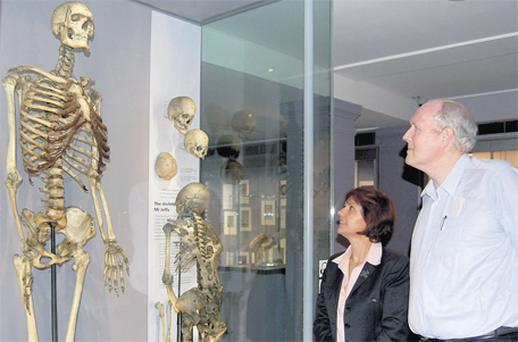 Professor Marta Korbonits with the skeleton of the 'Irish Giant', Charles Byrne, and Brendan Holland, who has the same gene