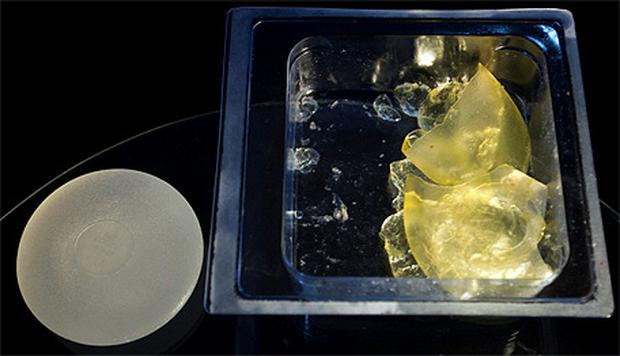 A defective silicone gel breast implant manufactured by the now-defunct French company Poly Implant Prothese