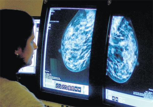 Women are encouraged to have regular mammograms