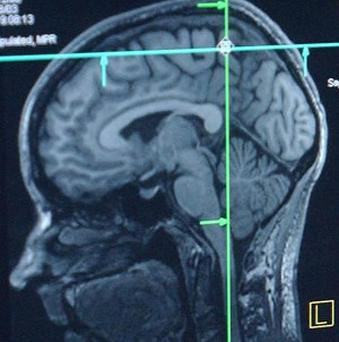 By working with people undergoing brain surgery, scientists say they have moved towards hearing imagined speech using electronic telepathy