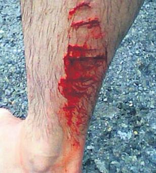The wounds inflicted by the shark in the sea off New Zealand
