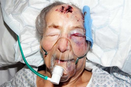 Emma Winnall from Moseley, Birmingham was assaulted in her bed as she slept