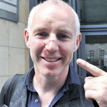 Today FM presenter Ray D'Arcy shows the injuries he sustained after he tripped over the stub of a signpost while out jogging