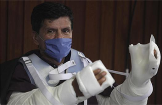 Gabriel Granados Vergara received a double arm transplant at the National Institute of Medical Science and Nutrition in Mexico City. Photo: AP