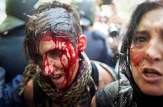 A protester bleeds from a head injury as she is detained by riot police during clashes between supporters of Spanish coal miners and riot police as they ended a