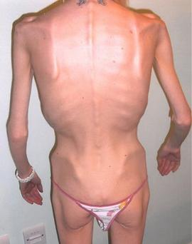 Emma O'Neil is a former anorexic who weighed less than three stone