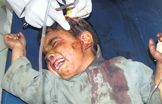 An Afghan boy receives treatment at a hospital after a suicide bomb attack in Khost province.