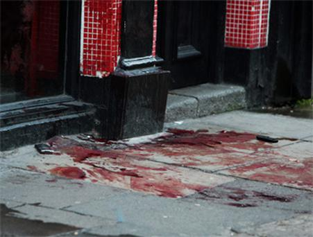 Blood on the pavement at the scene of the attack on Capel Street