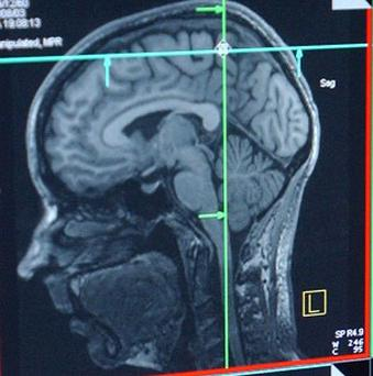 Brain scans may be able to help people choose their careers, scientists claim
